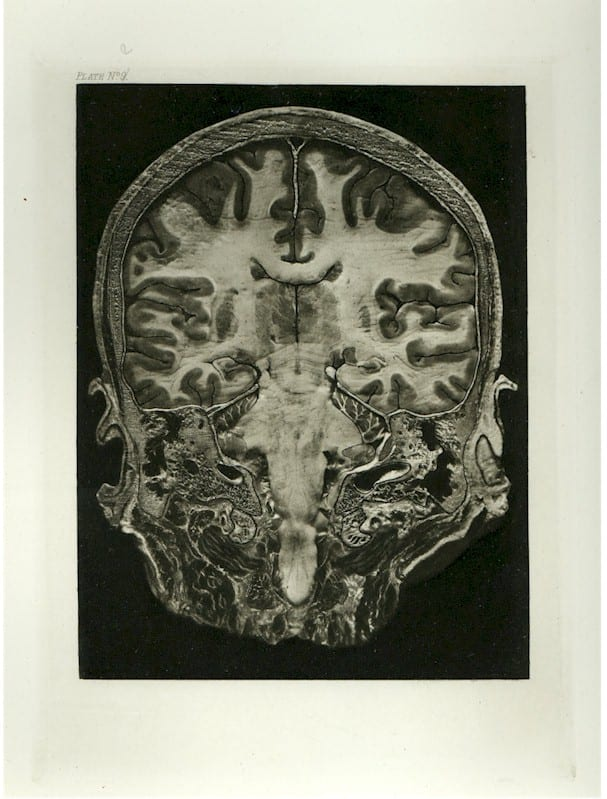 Illustration from Macewen's Atlas of Head Sections, 1893.
