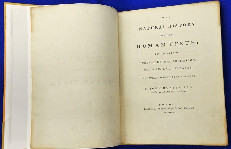 Natural History of the Human Teeth by John Hunter