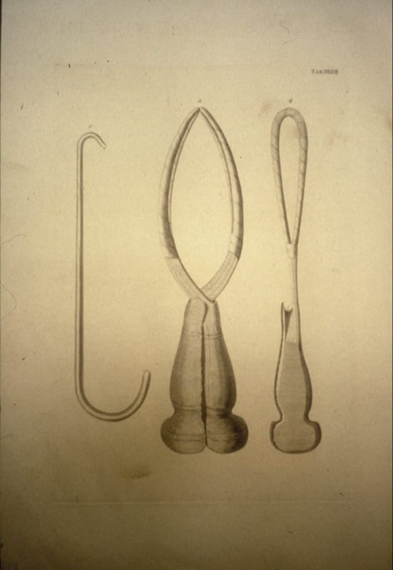 Forceps (centre) developed by William Smellie