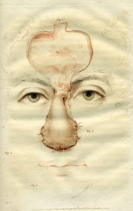 Ancient Indian method of restoring a lost nose from Carpue, 1816
