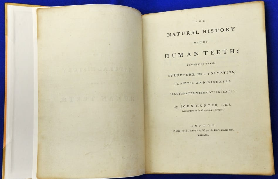 Natural History of the Human Teeth by John Hunter