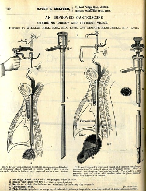 mayer-and-meltzer-gastroscope-c-1914a